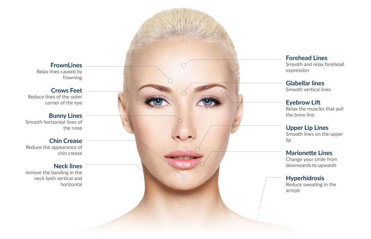 Wrinkle Relaxers Perth | Wrinkle Injections - Perth WA