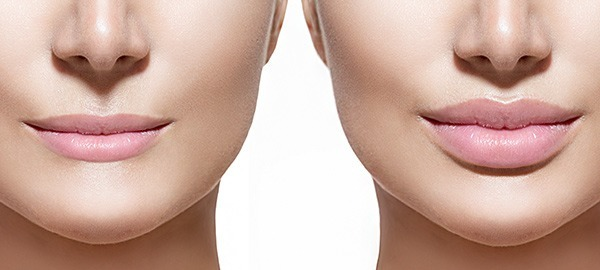 Dermal Fillers Perth | Lip & Cheek Fillers - Perth WA