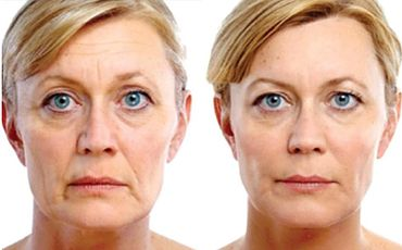Wrinkle Relaxers Perth