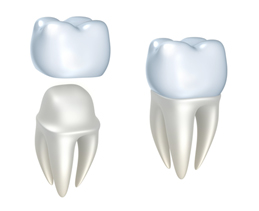 dental_crowns_and_bridges_img1