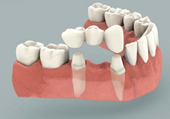 dental_crowns_and_bridges_img2