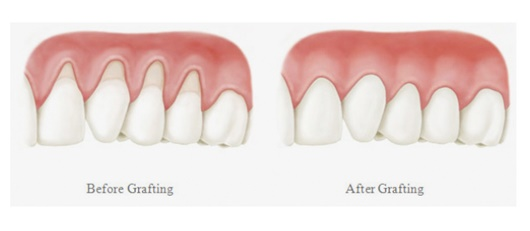 Gum Grafting and Contouring