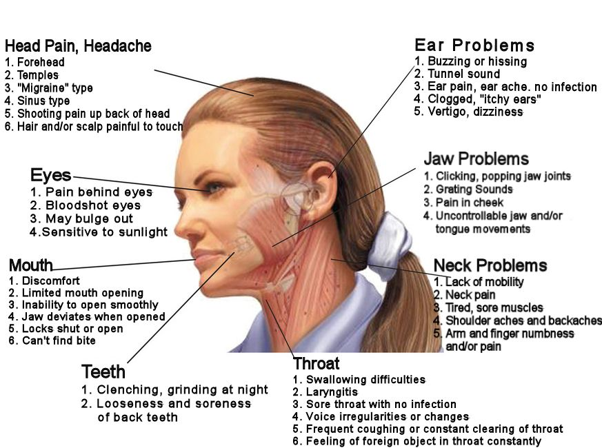 jaw_joint_headache_img_3