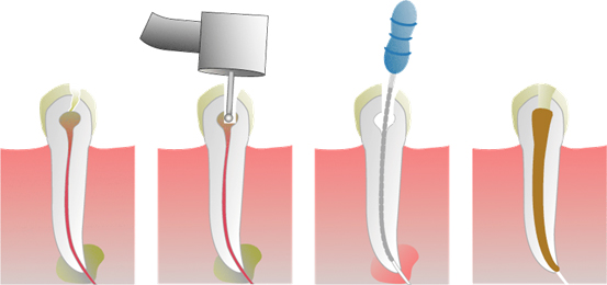 root_canal_treatment_img_1