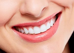 Smile Makeover services in perth