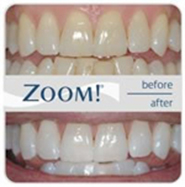 Teeth Whitening services in Maddington