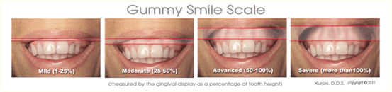 Gummy Smile treatrments at nearby you