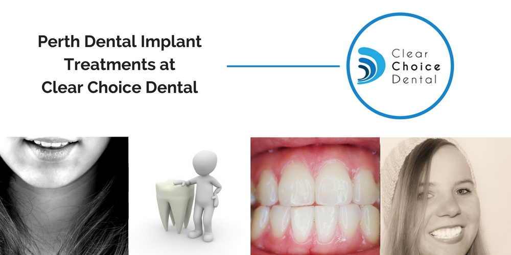 Perth Dental Implants Treatment