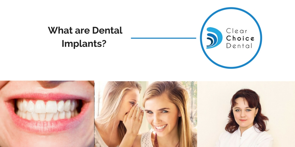 What Are Dental Implants? Explained By A Perth Cosmetic. Learning A Foreign Language Lap Band Removal. Public Relations Course Idea Cellular Payment. Chicago Plastic Surgeons Syracuse Mba Ranking. Chiropractor Abilene Tx Homes In Avon Indiana. Personal Training Resume Garage Door Bellevue. Locksmith Pinellas Park Anterior Back Surgery. Custom Printed Water Bottles. Mortgage Rates Seattle Wa Forex Wire Transfer