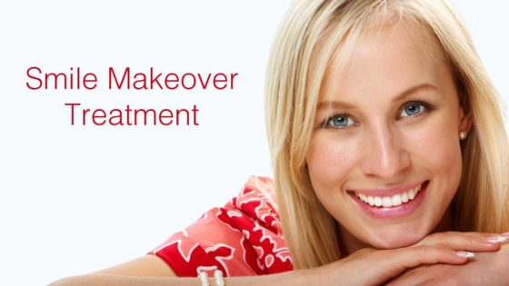 smile-makeover-treatment