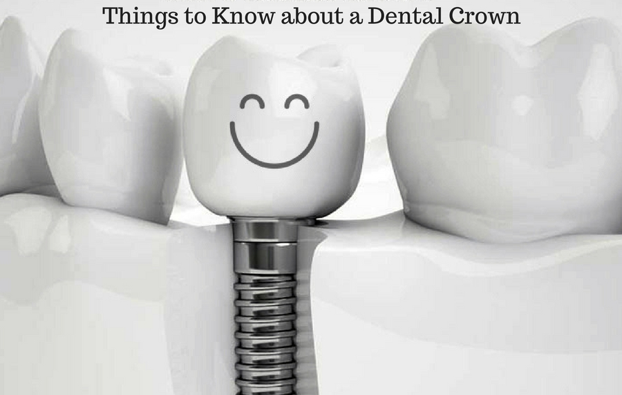 things-to-know-about-a-dental-crown