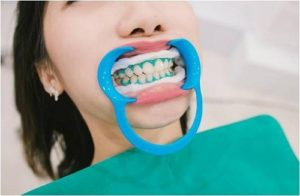 treatments-to-correct-uneven-teeth