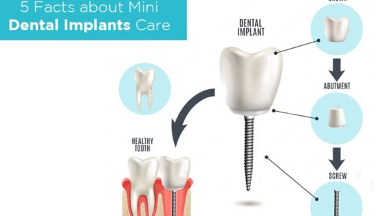 need-to-know-about-mini-dental-implants
