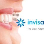 invisalign braces perth